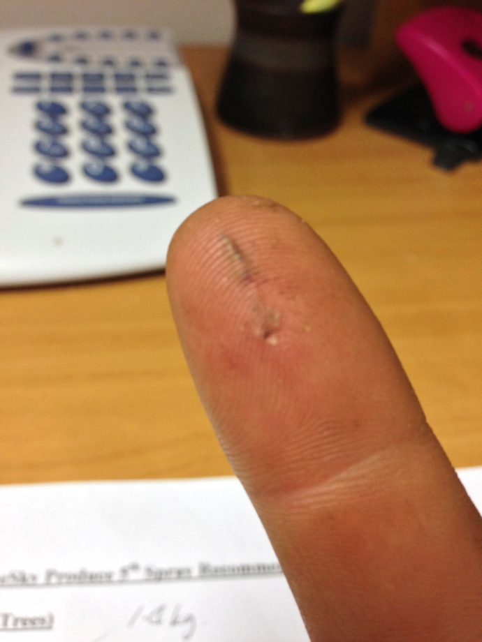 Matt's whopper splinter from unloading hay - ouch!